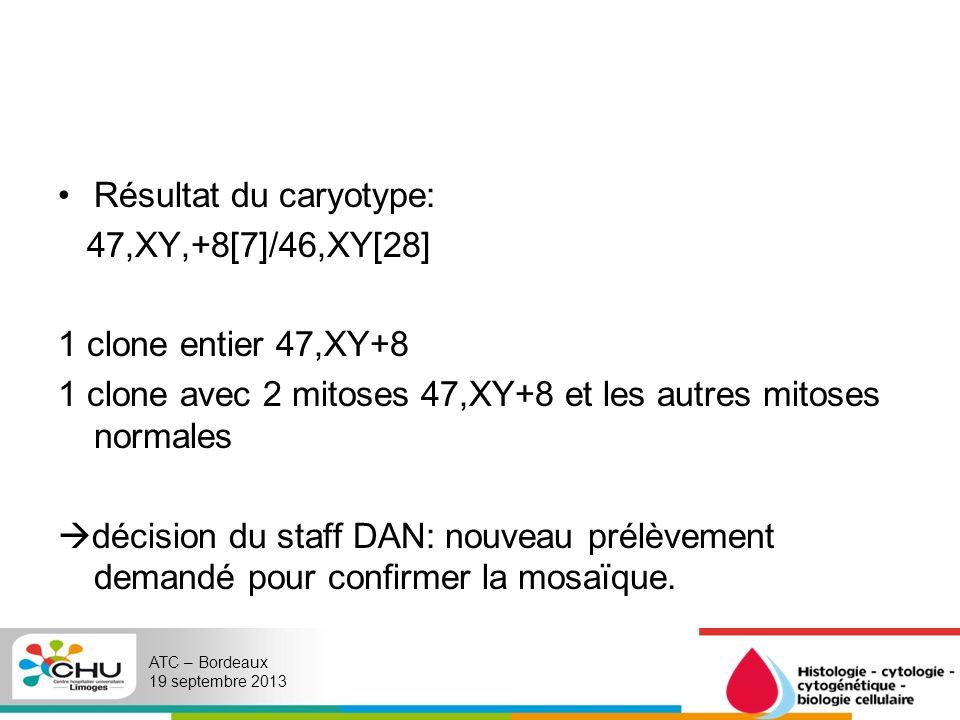 Résultat du caryotype: 47,XY,+8[7]/46,XY[28] 1 clone entier 47,XY+8